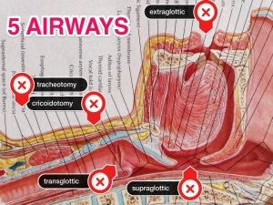 5 Airways
